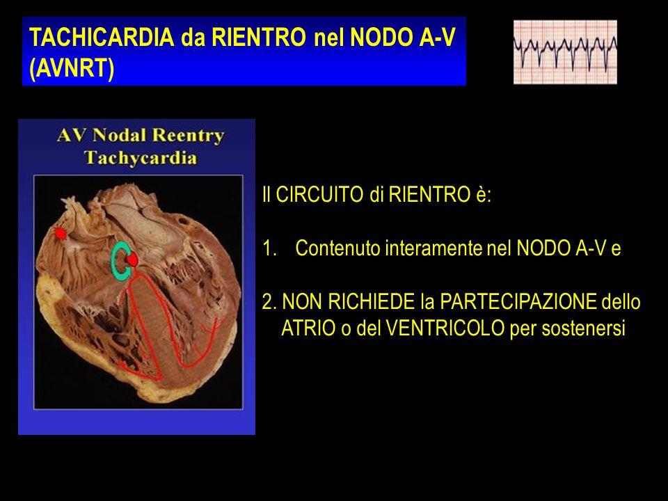 TACHICARDIA da RIENTRO nel NODO A-V (AVNRT)