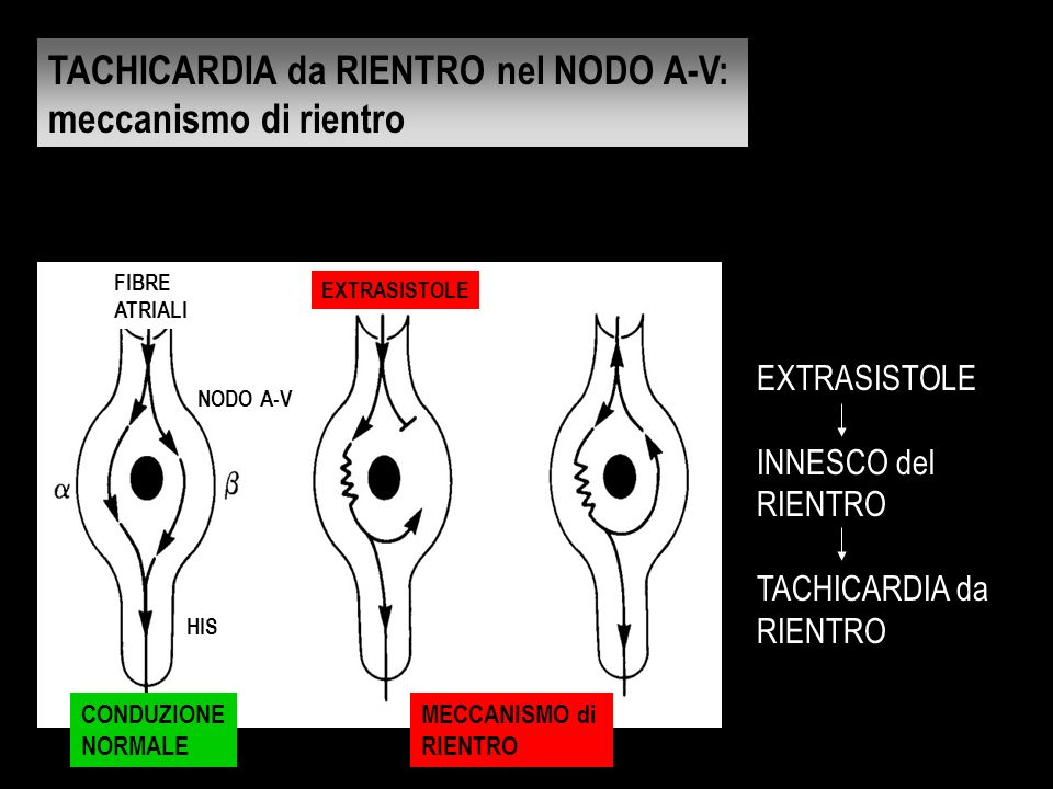 TACHICARDIA da RIENTRO nel NODO A-V: meccanismo di rientro
