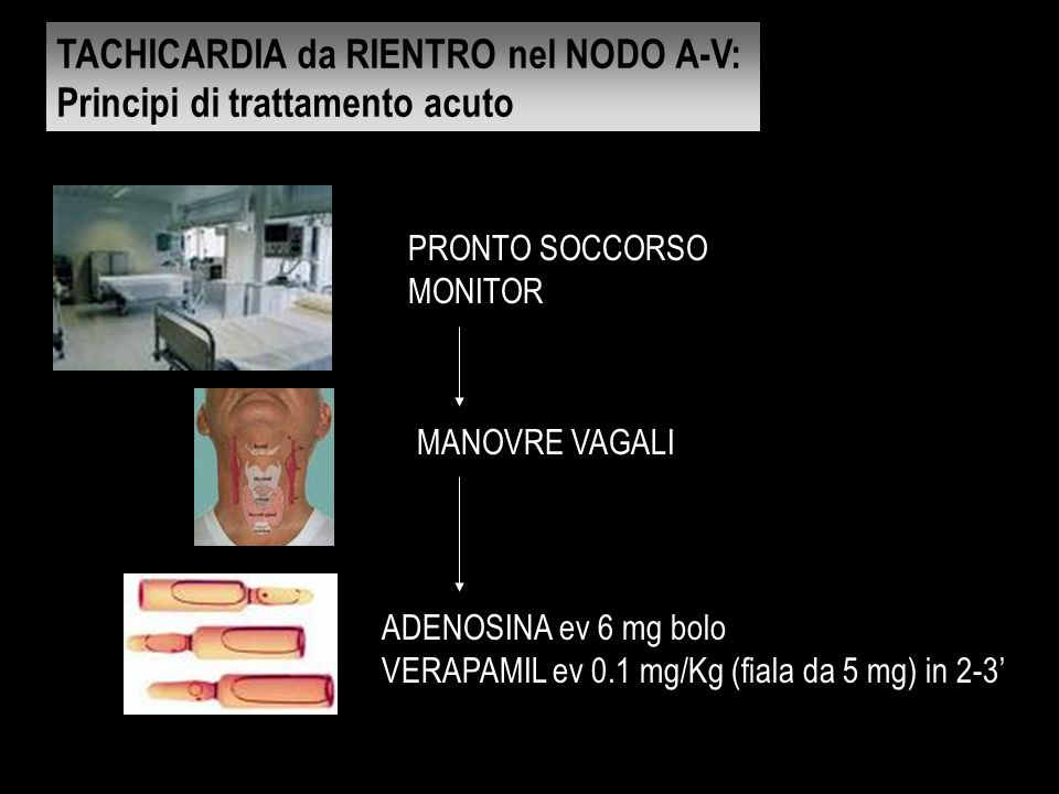 TACHICARDIA da RIENTRO nel NODO A-V: Principi di trattamento acuto