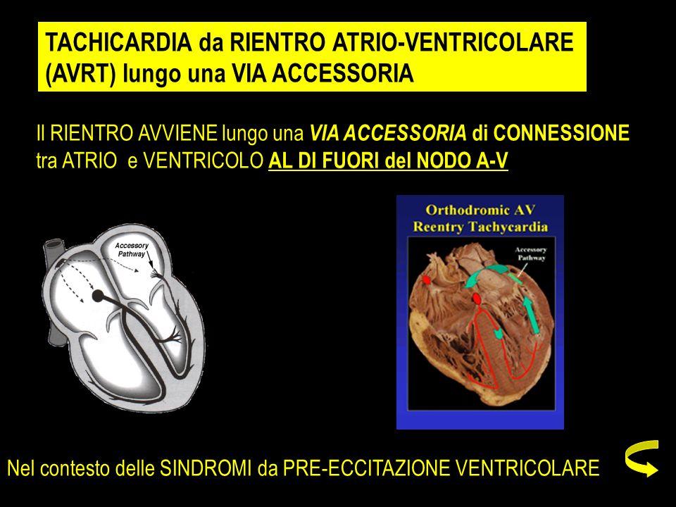 TACHICARDIA da RIENTRO ATRIO-VENTRICOLARE