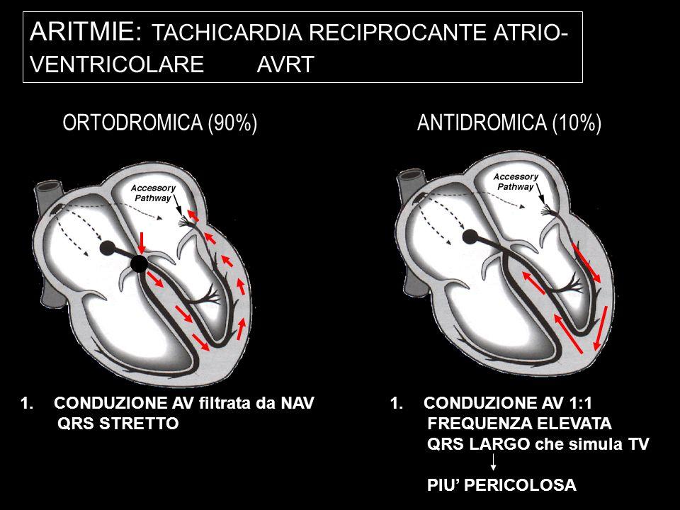 ARITMIE: TACHICARDIA RECIPROCANTE ATRIO-