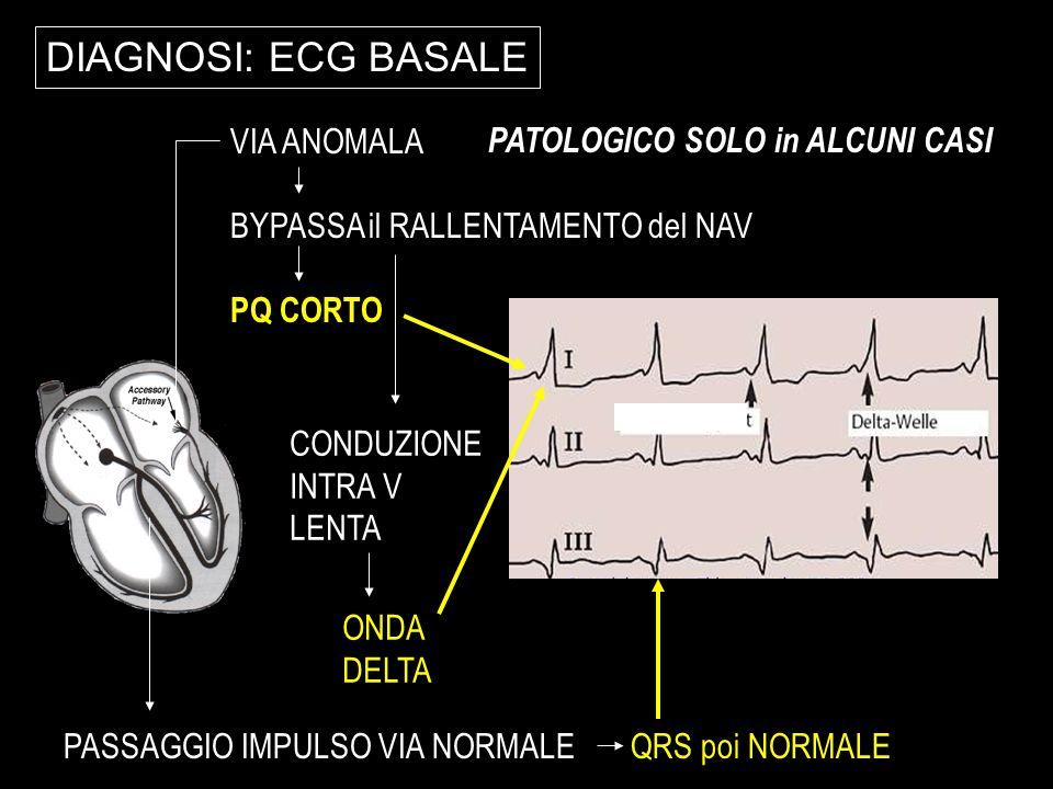 DIAGNOSI: ECG BASALE VIA ANOMALA PATOLOGICO SOLO in ALCUNI CASI