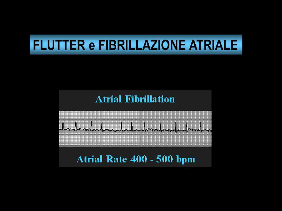 FLUTTER e FIBRILLAZIONE ATRIALE