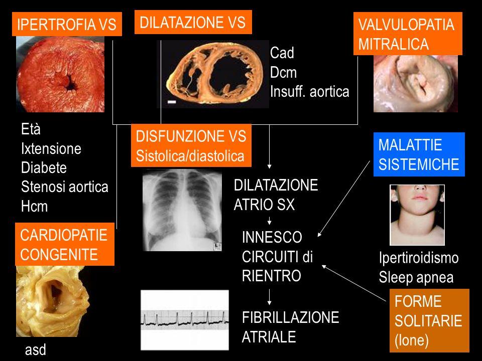 IPERTROFIA VS DILATAZIONE VS. VALVULOPATIA. MITRALICA. Cad. Dcm. Insuff. aortica. Età. Ixtensione.