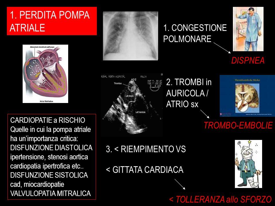 1. PERDITA POMPA ATRIALE 1. CONGESTIONE POLMONARE DISPNEA 2. TROMBI in