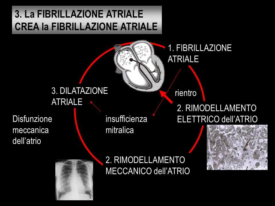 3. La FIBRILLAZIONE ATRIALE CREA la FIBRILLAZIONE ATRIALE