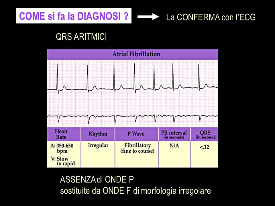 COME si fa la DIAGNOSI La CONFERMA con l'ECG QRS ARITMICI