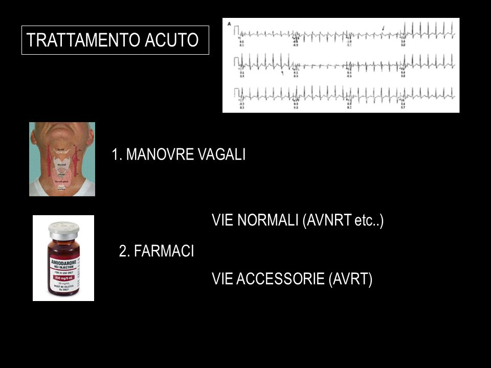 TRATTAMENTO ACUTO 1. MANOVRE VAGALI VIE NORMALI (AVNRT etc..)
