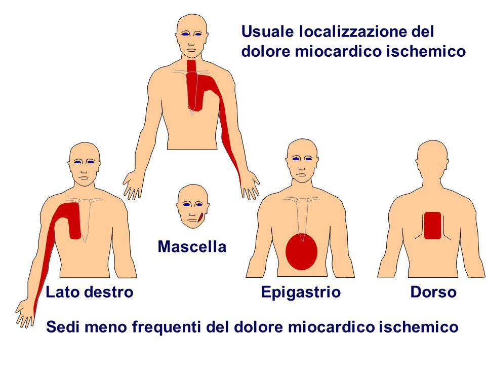 Sedi meno frequenti del dolore miocardico ischemico