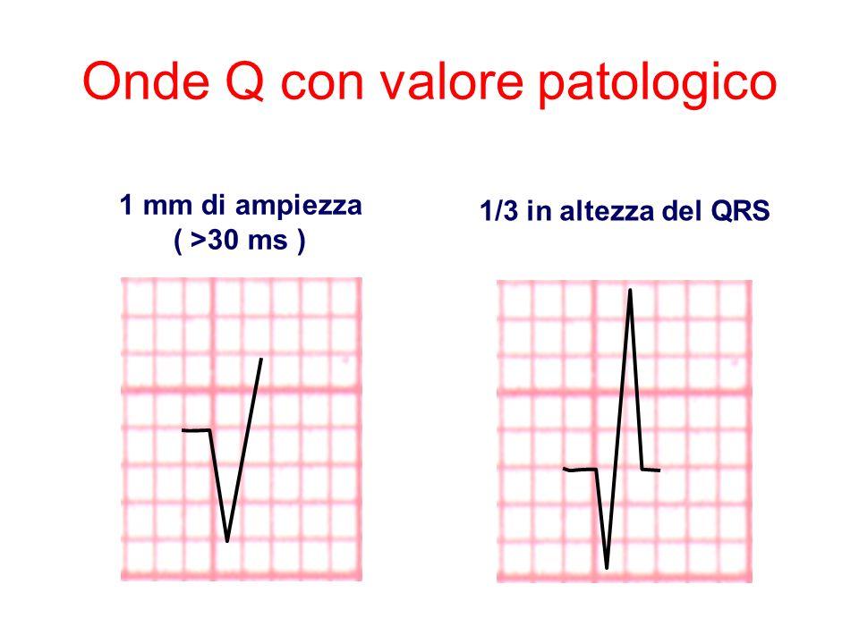 Onde Q con valore patologico