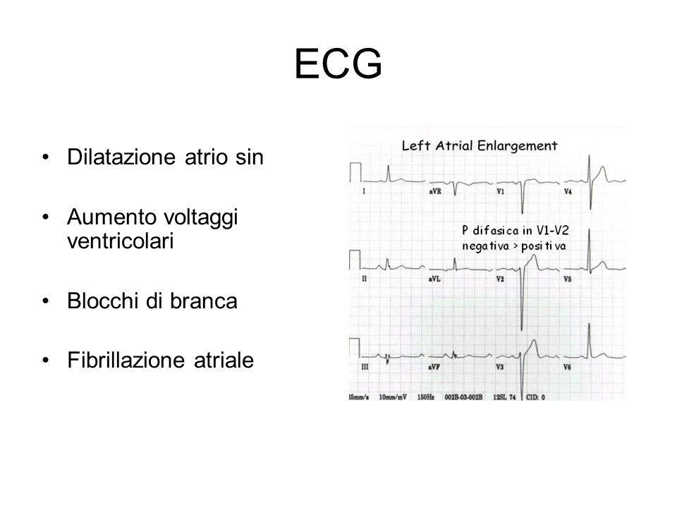 ECG Dilatazione atrio sin Aumento voltaggi ventricolari