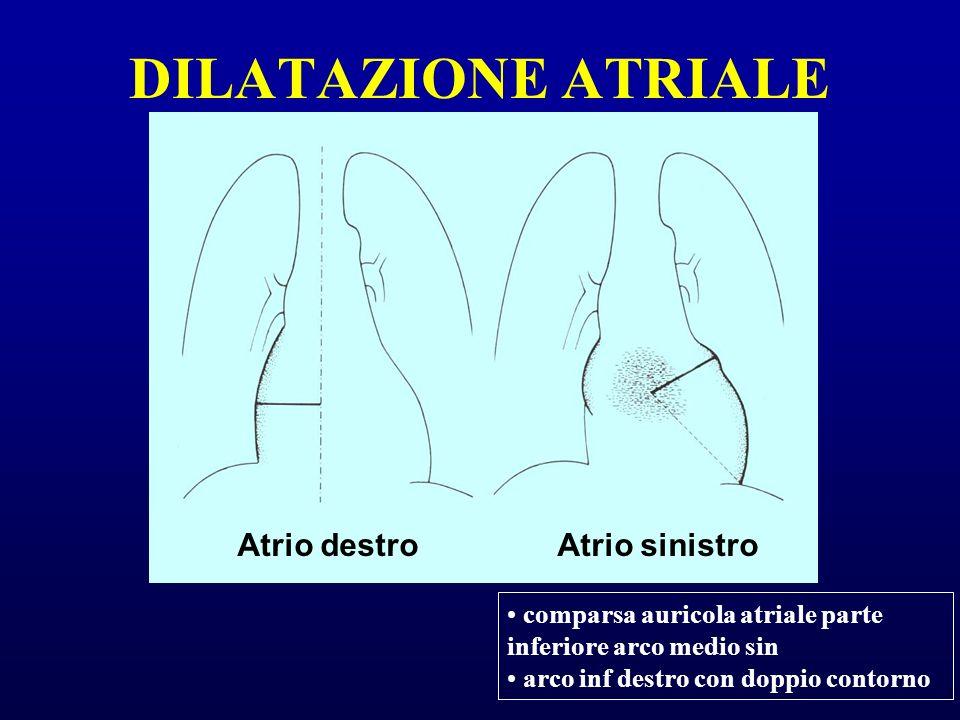 DILATAZIONE ATRIALE Atrio destro Atrio sinistro
