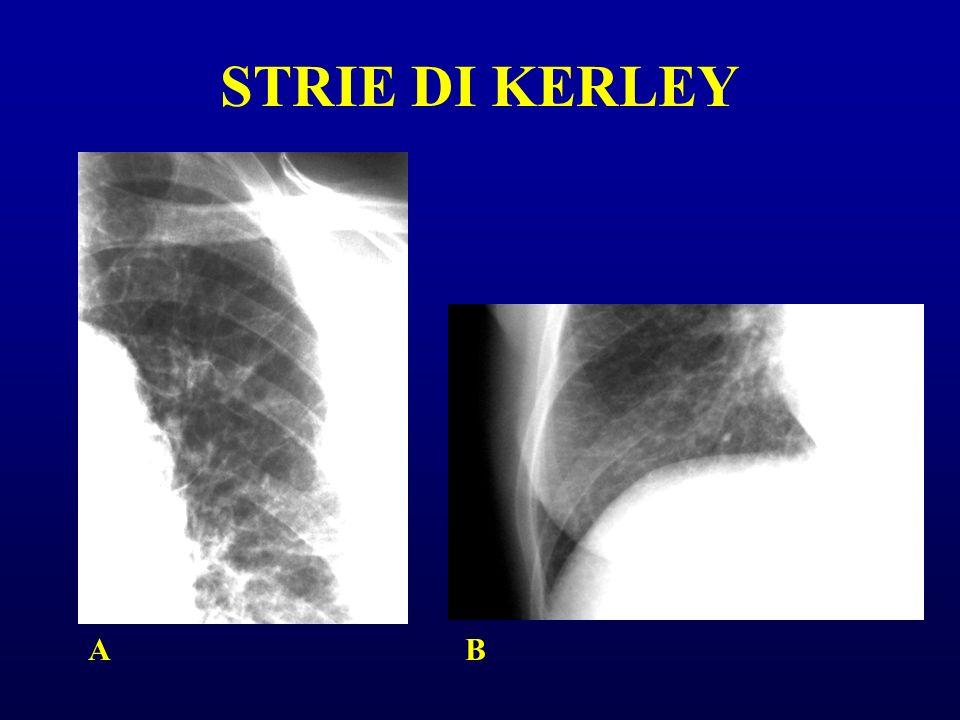 STRIE DI KERLEY A B