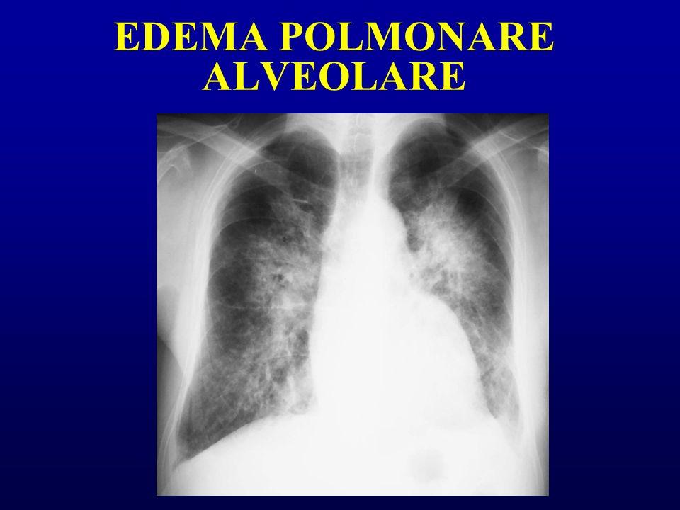 EDEMA POLMONARE ALVEOLARE