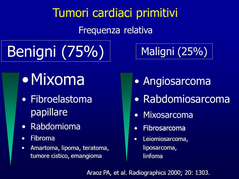 Tumori cardiaci primitivi