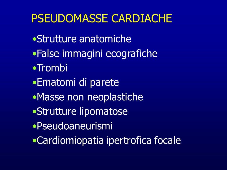 PSEUDOMASSE CARDIACHE