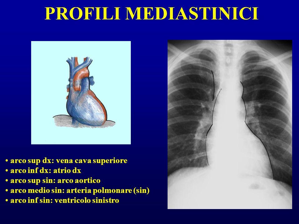 PROFILI MEDIASTINICI arco sup dx: vena cava superiore