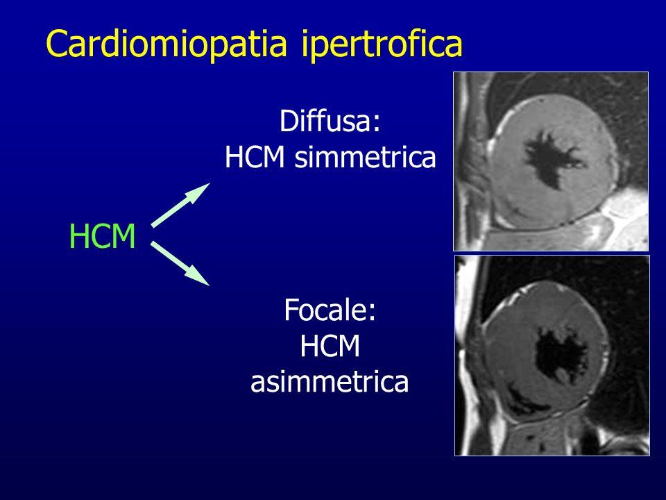 Cardiomiopatia ipertrofica