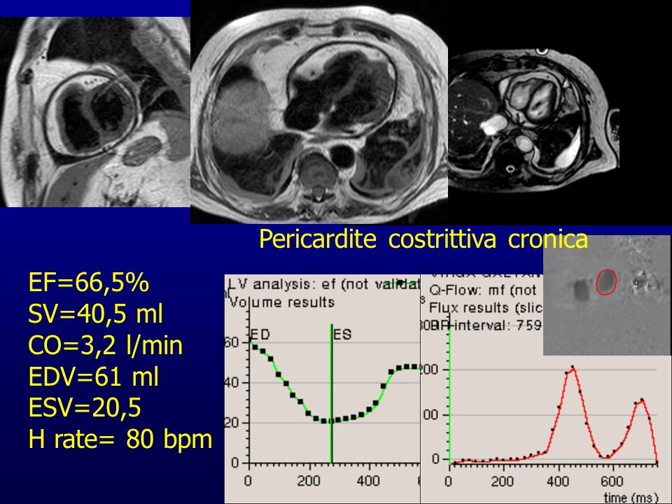 Pericardite costrittiva cronica