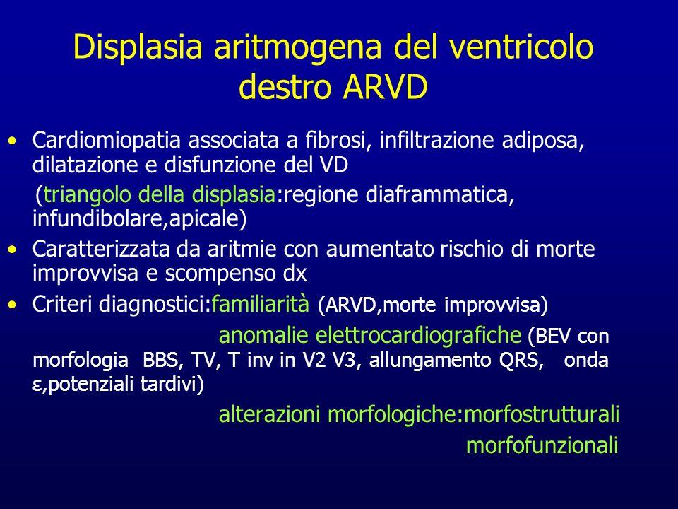 Displasia aritmogena del ventricolo destro ARVD