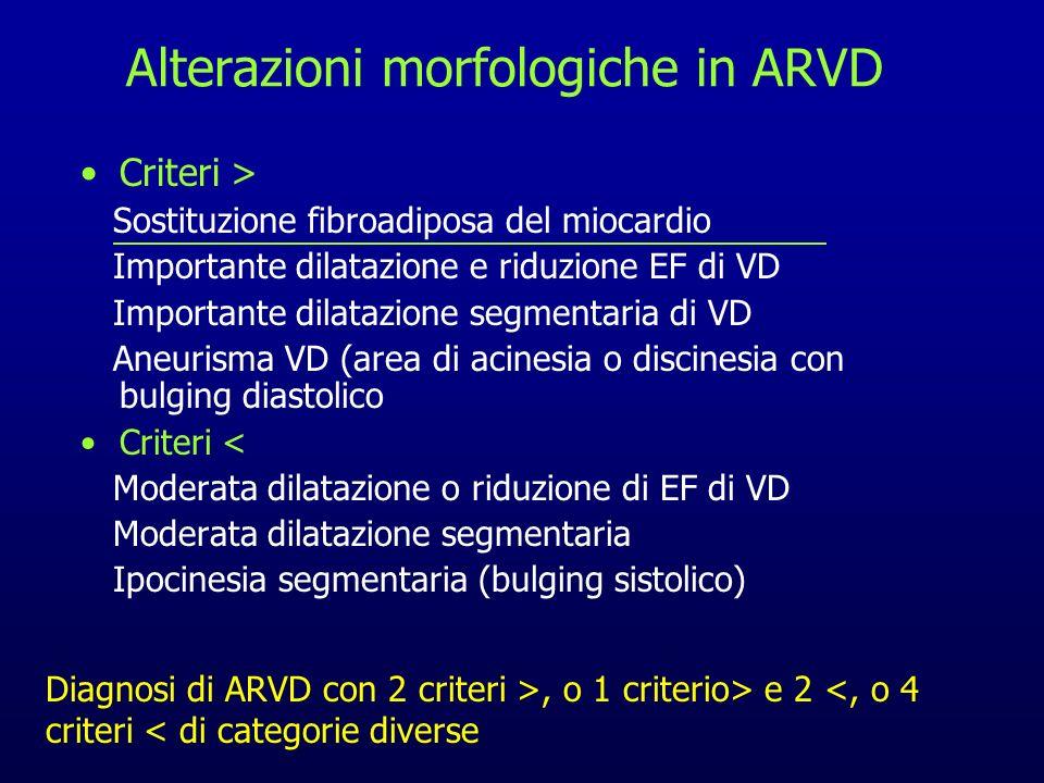 Alterazioni morfologiche in ARVD