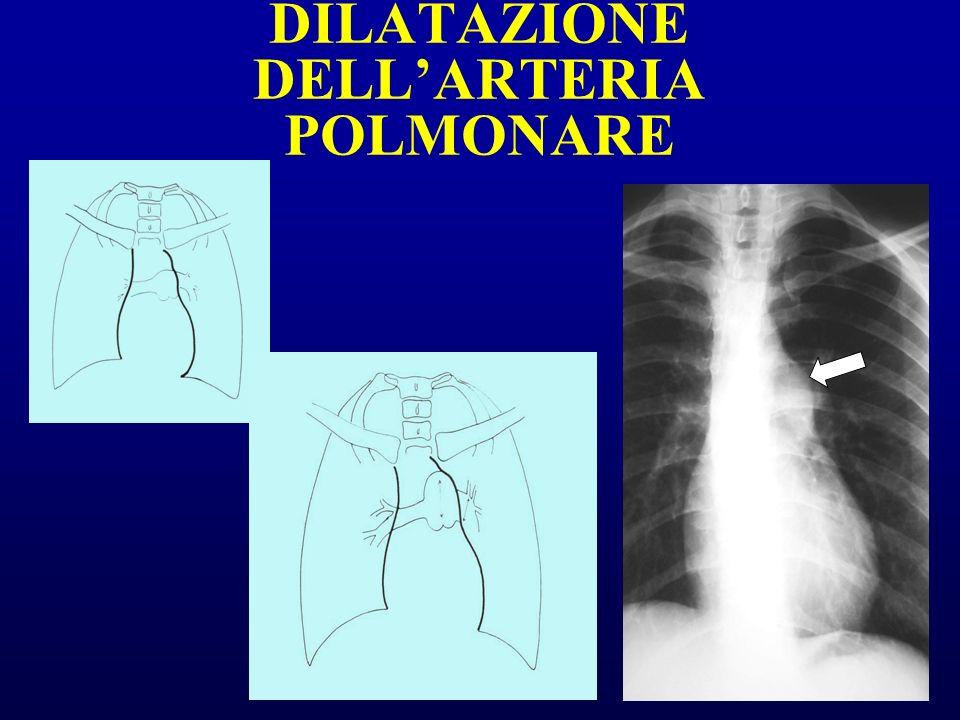 DILATAZIONE DELL'ARTERIA POLMONARE