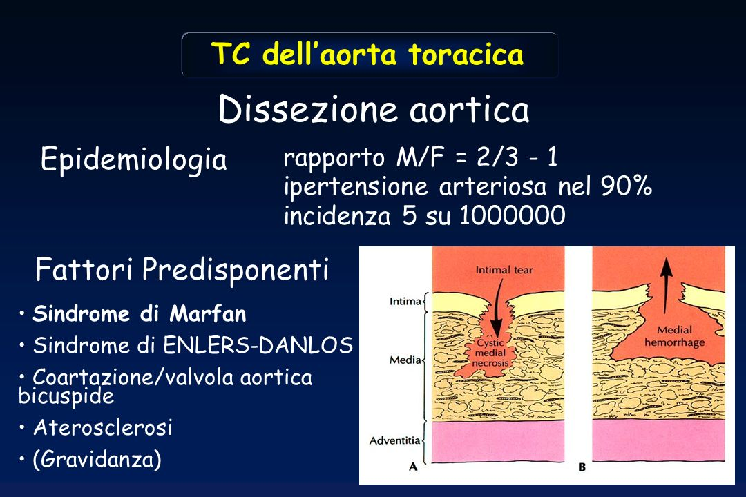 Dissezione aortica TC dell'aorta toracica Epidemiologia