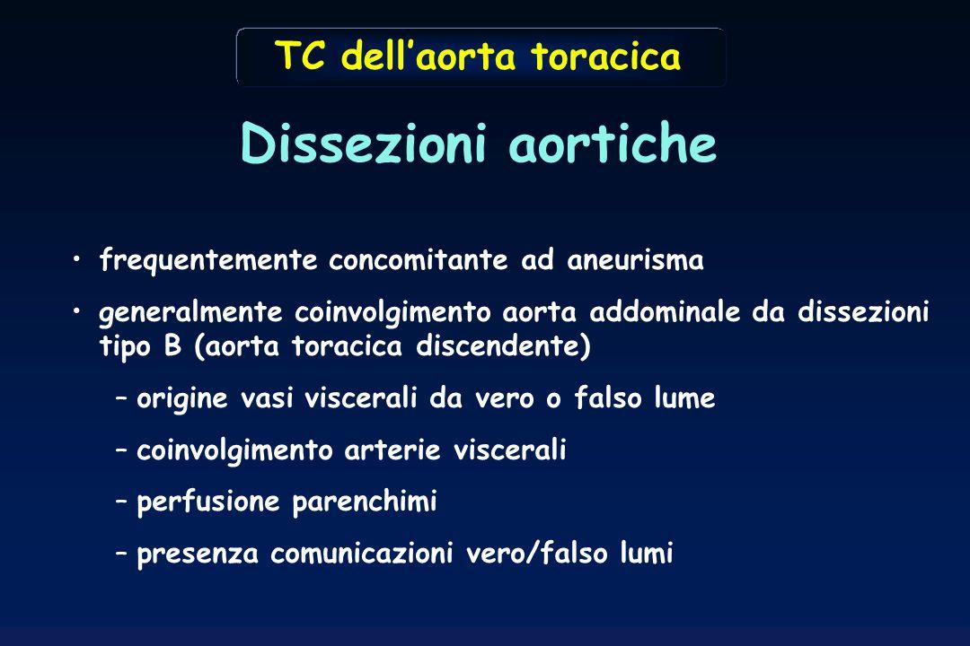 Dissezioni aortiche TC dell'aorta toracica
