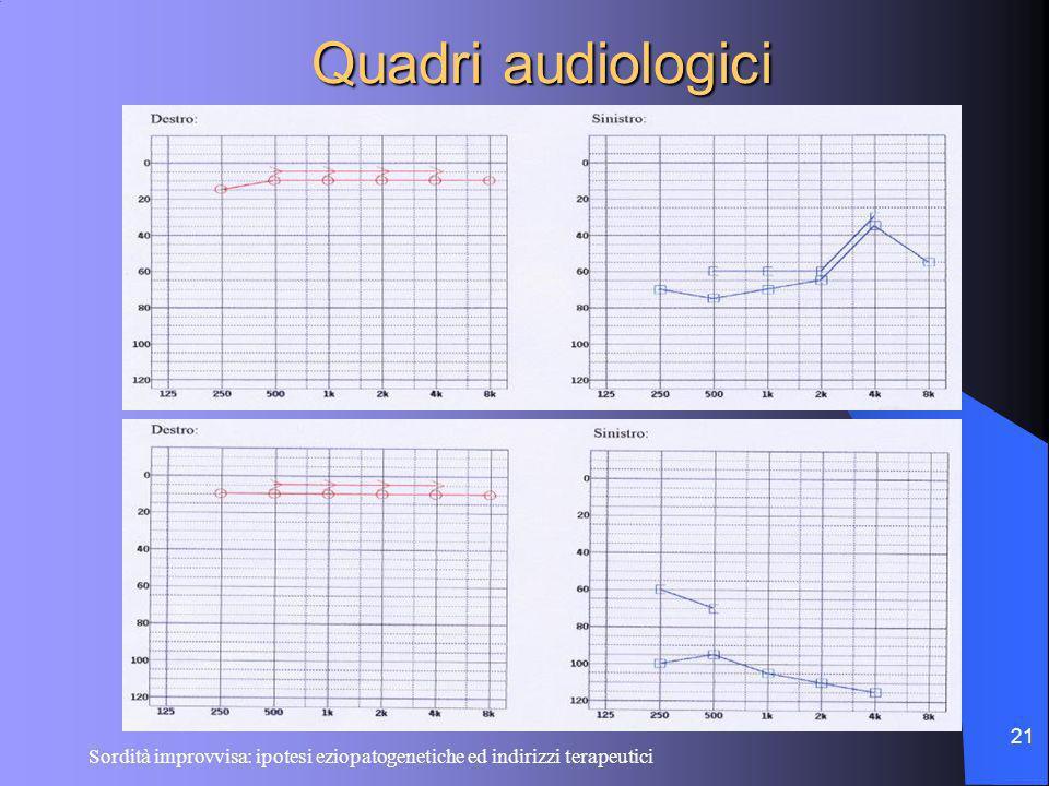 Quadri audiologici Sordità improvvisa: ipotesi eziopatogenetiche ed indirizzi terapeutici