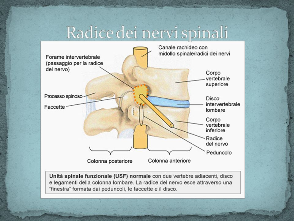 Radice dei nervi spinali