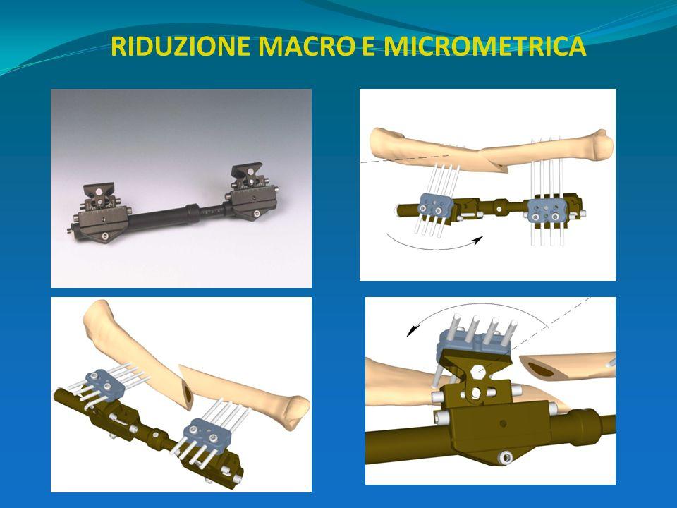 RIDUZIONE MACRO E MICROMETRICA