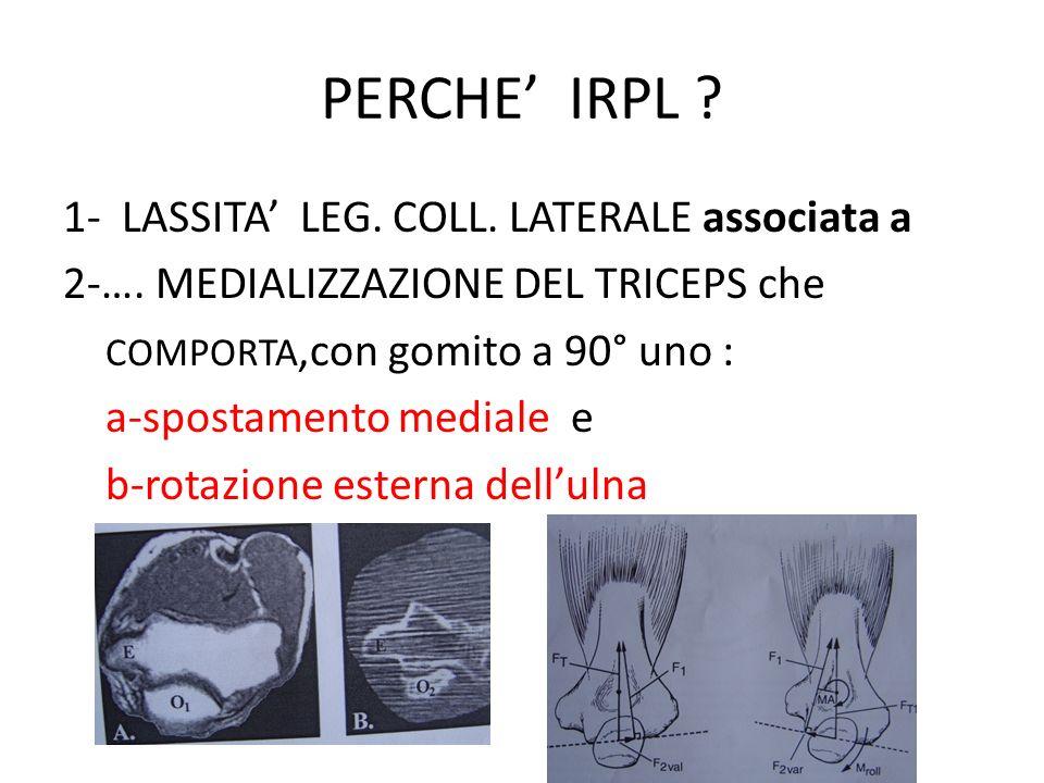 PERCHE' IRPL