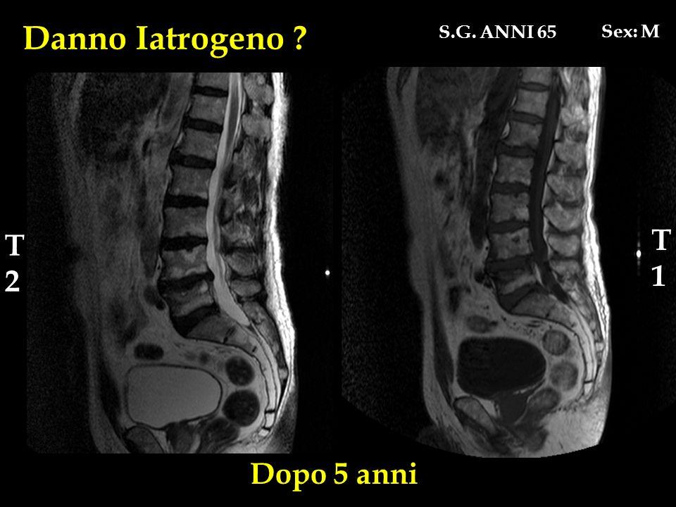 Danno Iatrogeno S.G. ANNI 65 Sex: M T1 T2 Dopo 5 anni