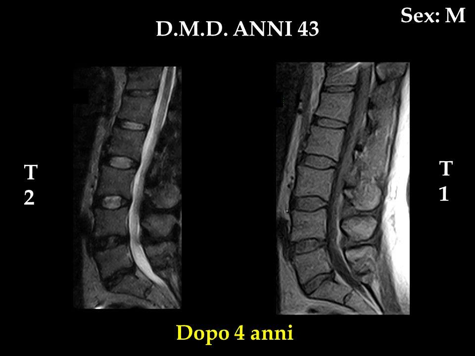 Sex: M D.M.D. ANNI 43 T1 T2 Dopo 4 anni