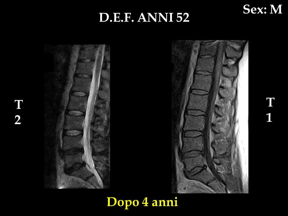 Sex: M D.E.F. ANNI 52 T1 T2 Dopo 4 anni