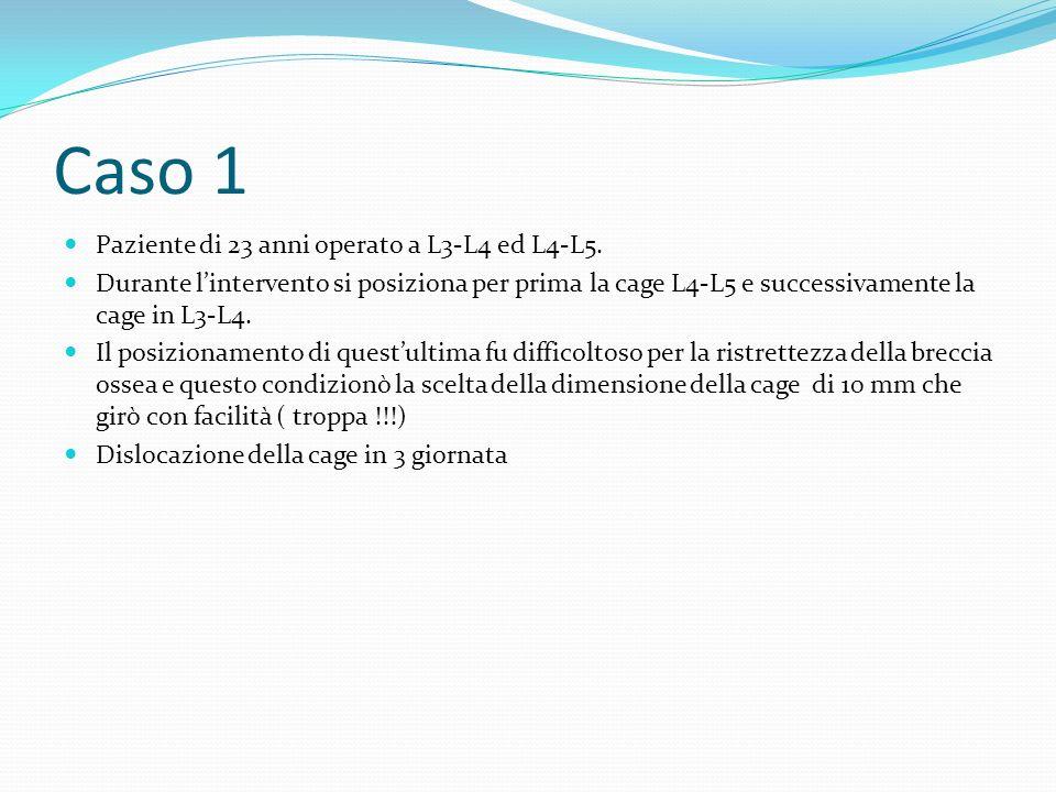 Caso 1 Paziente di 23 anni operato a L3-L4 ed L4-L5.