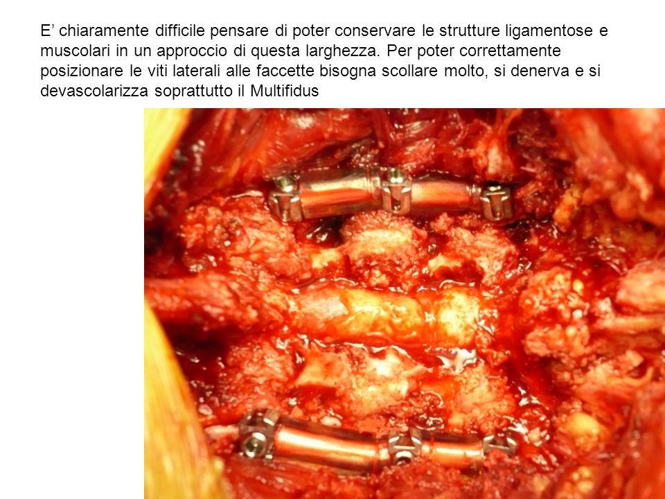 E' chiaramente difficile pensare di poter conservare le strutture ligamentose e muscolari in un approccio di questa larghezza.