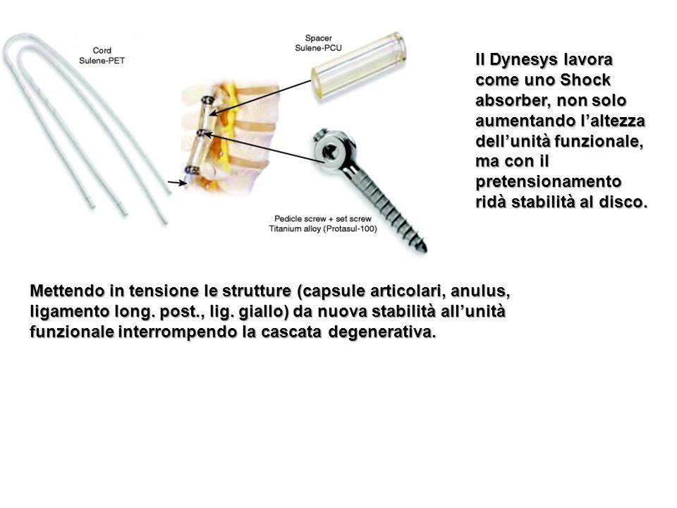 Il Dynesys lavora come uno Shock absorber, non solo aumentando l'altezza dell'unità funzionale, ma con il pretensionamento ridà stabilità al disco.