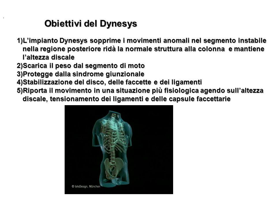 . Obiettivi del Dynesys. 1)L'impianto Dynesys sopprime i movimenti anomali nel segmento instabile.