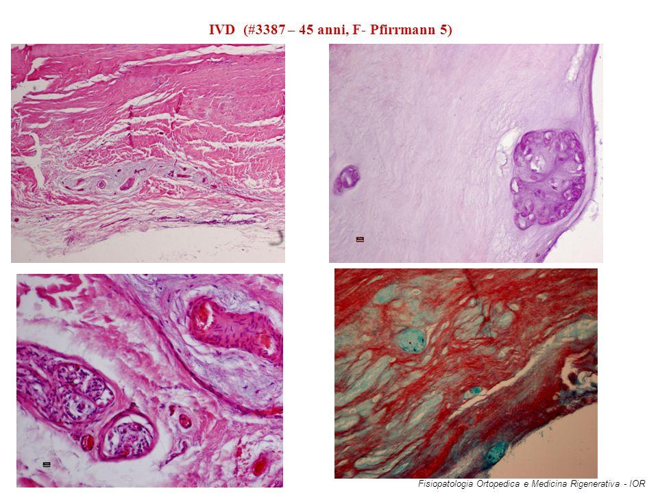 IVD (#3387 – 45 anni, F- Pfirrmann 5)