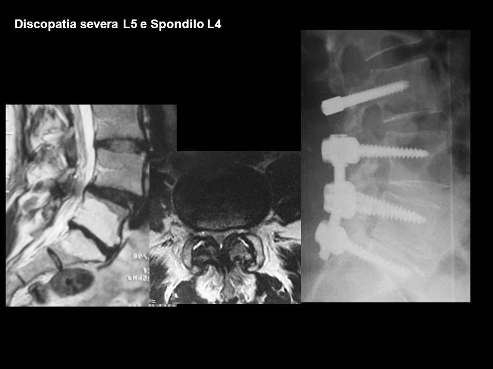 Discopatia severa L5 e Spondilo L4