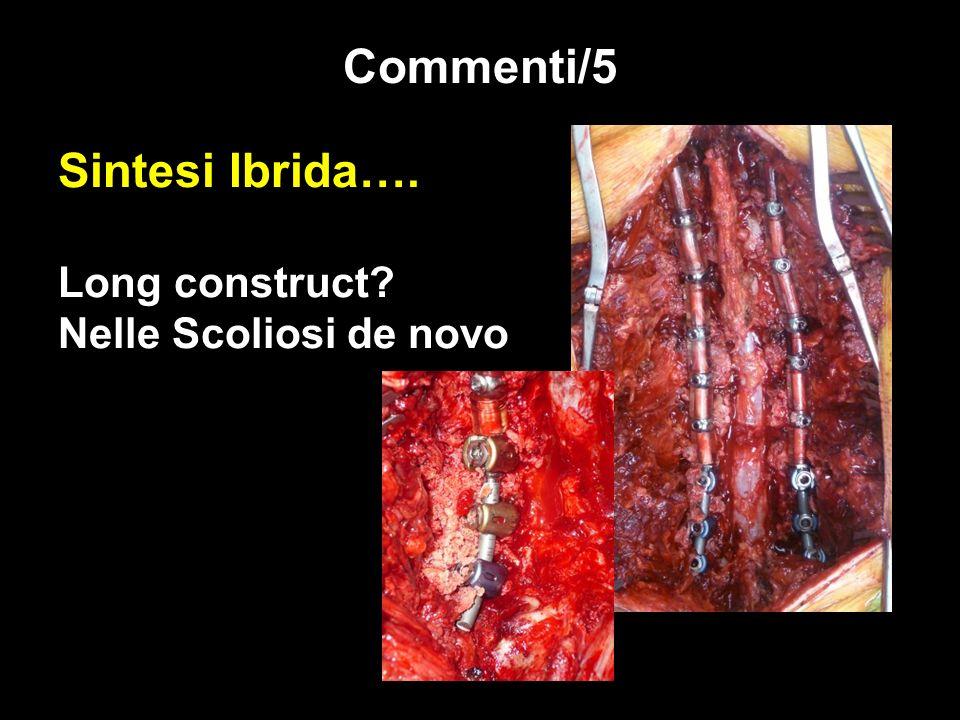 Sintesi Ibrida…. Long construct Nelle Scoliosi de novo
