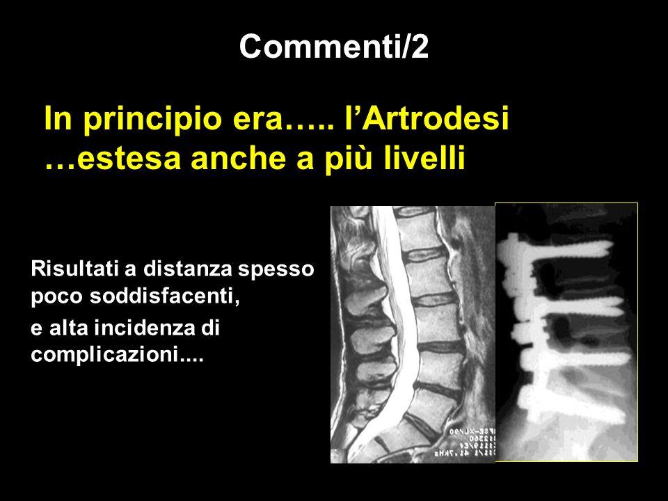 In principio era….. l'Artrodesi …estesa anche a più livelli