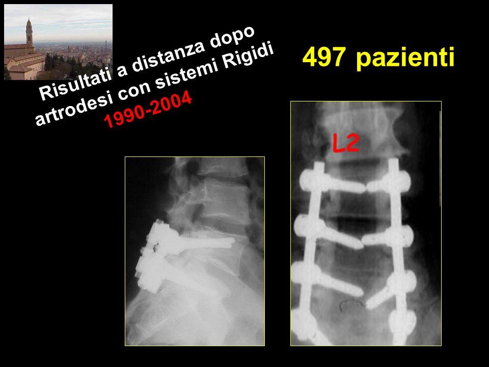 Risultati a distanza dopo artrodesi con sistemi Rigidi