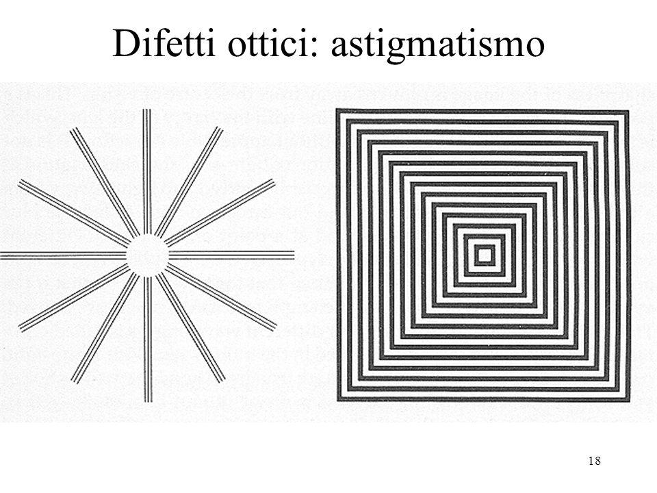 Difetti ottici: astigmatismo