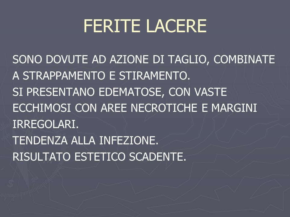 FERITE LACERE SONO DOVUTE AD AZIONE DI TAGLIO, COMBINATE