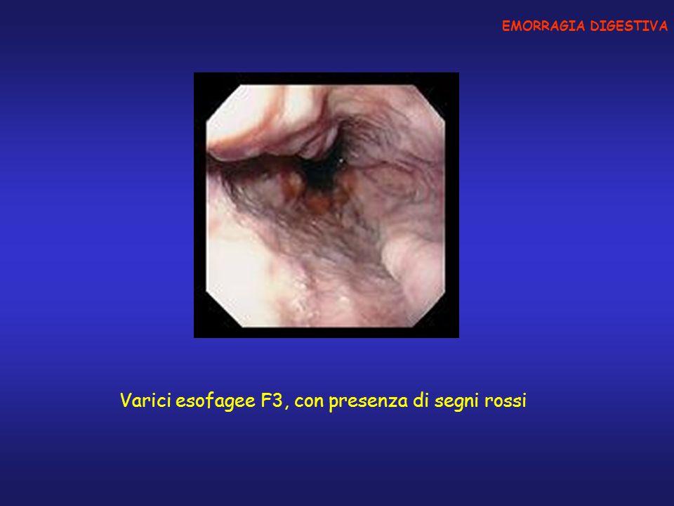 Varici esofagee F3, con presenza di segni rossi