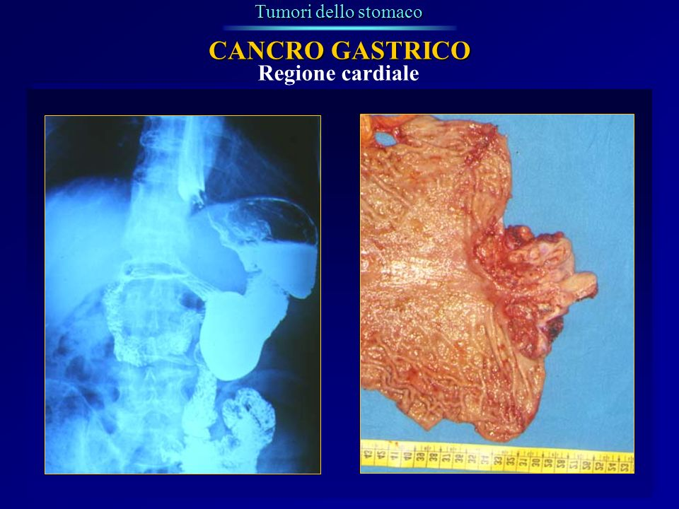 Tumori dello stomaco CANCRO GASTRICO Regione cardiale