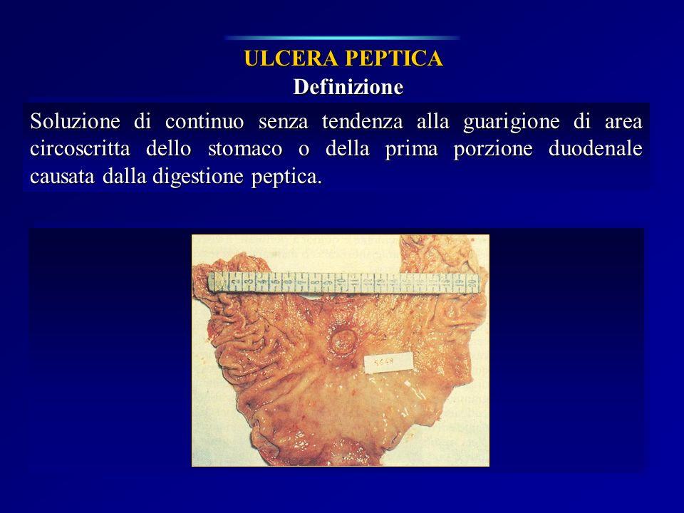 ULCERA PEPTICA Definizione.