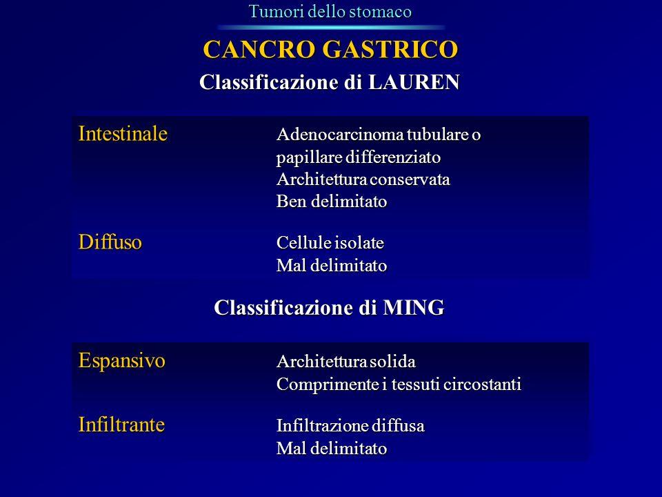 CANCRO GASTRICO Classificazione di LAUREN